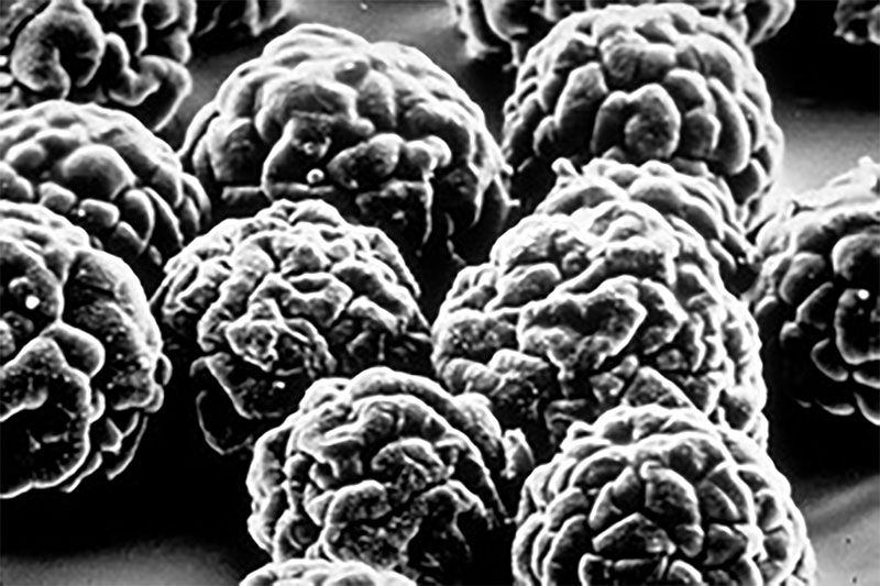 Electron microscope photograph of poliovirus which causes poliomyletis and post polio syndrome