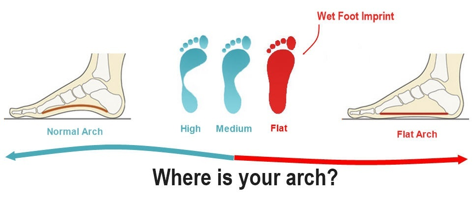 Comparison of normal feet and flat feet.