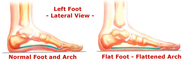 Illustration showing normal foot and flat foot.