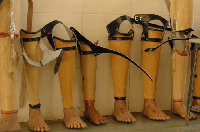 Jaipur Foot: A Cost Effective Prosthetic Leg