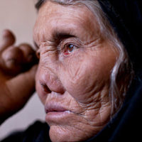 disability in leprosy cured person