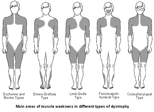 symptoms in various types of muscular dystrophy