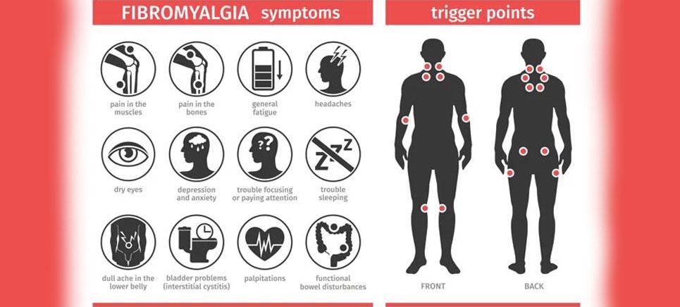illustration showing fibromyalgia symptoms and triggers