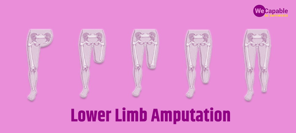 types of lower limb amputations