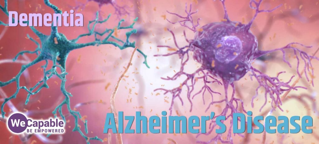 image showing neurons with overlay of words alzheimers disease and dementia.