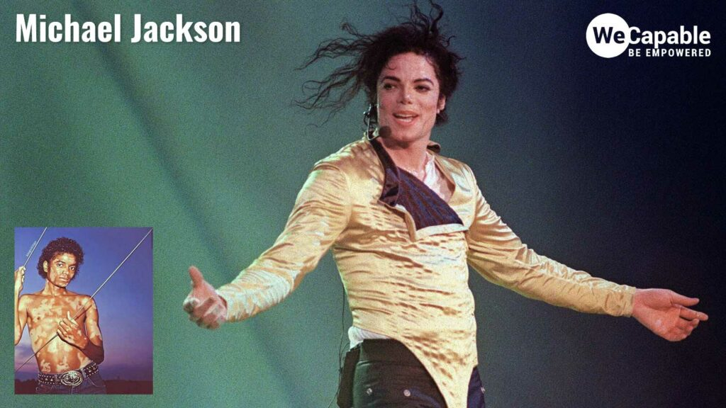 Photograph of michael jackson dancing and inset photo of MJ with vitiligo condition